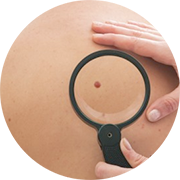 diagnostic-cancert-piele