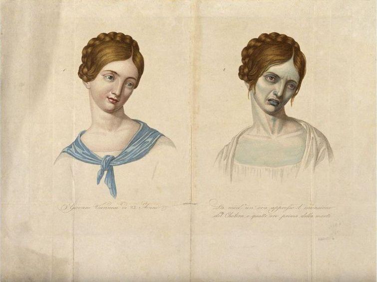 ilustrarea-schimbarilor-provocate-de-holera-1817