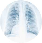 radiografie-plamani