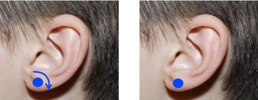 zona-guturai-urechi